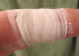 A selfie of my bandaged arm.